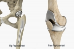 Hip and Knee Replacements – What Really Matters?