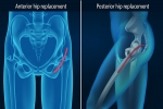 Is anterior hip replacement better?