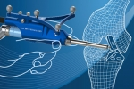 Is Robotic Joint Replacement Surgery Safe?